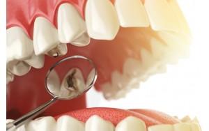Причины появления кариеса на зубах и методы его профилактики и лечения
