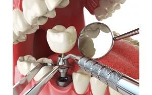 Имплантация коренных зубов: в чем преимущество процедуры